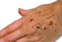 condition_age_spots